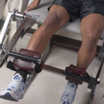 Surgical Treatment for Knee Injury